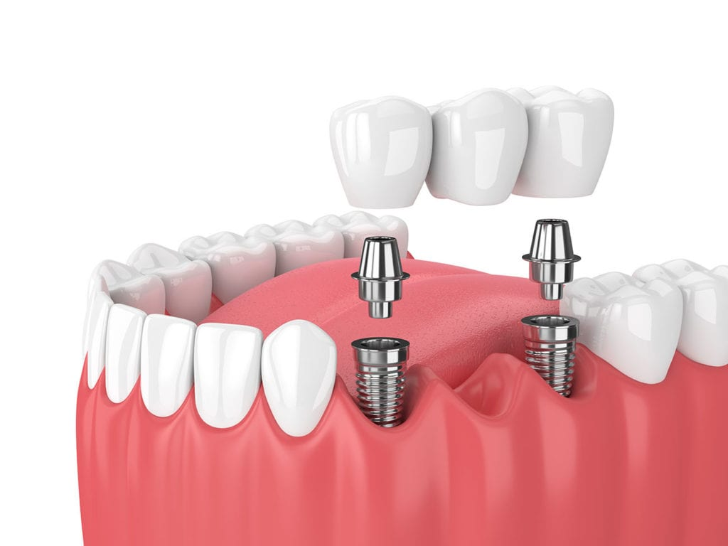Adult Dental Services in McAllen. General Cleaning, Sedation, Root Canals and More. Most Insurance Accepted. Schedule an Appointment Today. Special Needs Care. Bi-Lingual Staff. Patient Transportation. Open Late. Services: Nitrous Oxide, Oral Sedation, Hospital Dentistry. Dentist Dentist office Dentist near me Emergency dentist Pediatric dentist Family dentist Kids dentist Dental clinic Dental implants Cost of dental implants Teeth whitening Wisdom teeth removal Teeth cleaning Grinding teeth Affordable dentures Cosmetic dentist Invisalign Tooth pain Toothache Root canal Veneers Dental hygienist Gum disease Gum disease treatment Oral surgeon Tooth crown Tooth extraction Sensitive teeth Cavity Chipped tooth Invisible braces Walk in dentist How much do dental implants cost? Does insurance cover dental implants? How much does teeth whitening cost? What is gum disease? What is tooth decay? Do dentists offer payment plans? How often should you go to the dentist? At what age should children go to the dentist? Our comprehensive dental services include dental exams, teeth cleaning, braces, emergency dental care and much more. We gladly welcome walk-ins and .Stress-Free Experience for All Your Dental Needs. Save Big and Call Oasis Today. General & Cosmetic Solutions to Make You Look & Feel Your Best. Call Today for Specials. Special Offers · General Dentistry · Restorative Dentistry · Cosmetic Dentistry · About Us